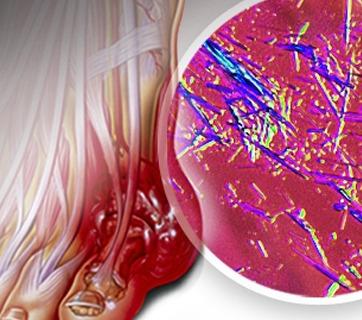 ¿Qué es el ácido úrico?